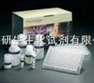 人内分泌腺来源的血管内皮生长因子(EG-VEGF)ELISA试剂盒