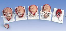 分娩过程模型