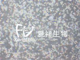 H9人急性淋巴母细胞白血病细胞
