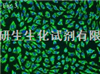 SP2/0(骨髓瘤细胞)