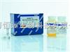 促甲狀腺素受體自身抗體(TRAb)
