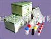 Mouse ssA/R0 ELISA试剂盒