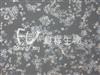 KYSE 450人食管鳞癌细胞